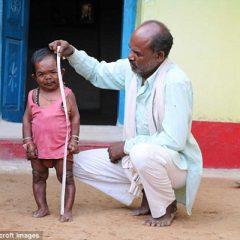 Самый маленький человек в мире — Басори Лал из Индии